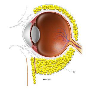 Hautstraffung und Raffung des Augenringmuskels mit Umlagerung des Fettgewebes