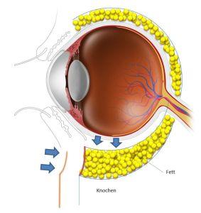 eingefallene Augen nach Tränensack Entfernung